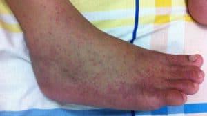 Primer izpuščaja pri vročici Chikungunya